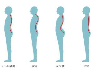 正しい姿勢と猫背の比較例